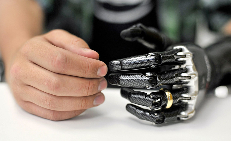 implante-bionico